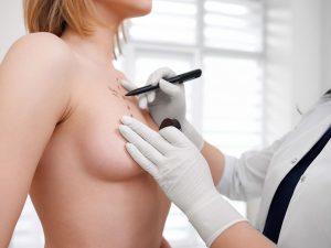 увеличивающая маммопластика