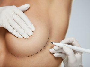 пластическая подтяжка груди