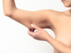 подтяжка мышц рук
