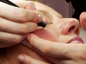 лечение мелких капилляров с помощью лазера