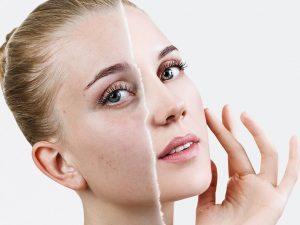 коричневые пятна на коже лечение лазером