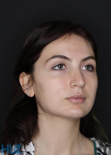 До удаления комков Биша женщине на лице - вид справа 2