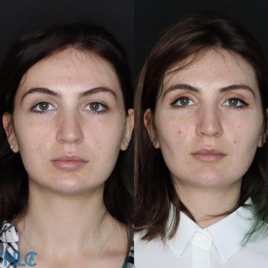 До и после удаления комков Биша женщине на лице - вид спереди