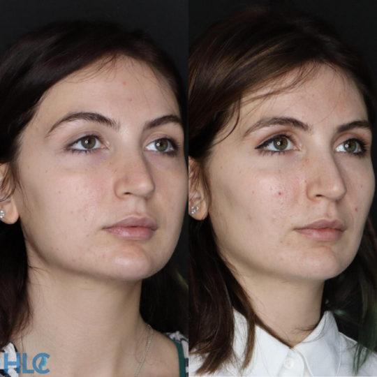 До и после удаления комков Биша женщине на лице - вид справа