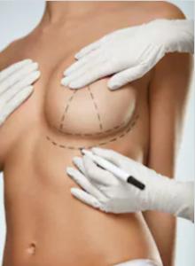 показания к лифтингу груди