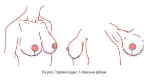 Т-образный разрез груди
