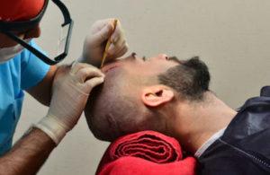 Хирург-трихолог проводит процедуру пересадки волос на голову пациенту