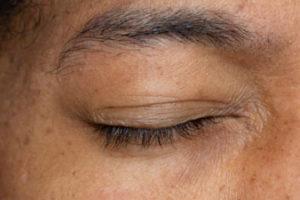 Пересадка волос на брови методом FUE вручную