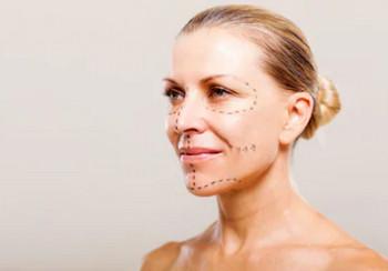 Подтяжка кожи лица: алгоритм, показания и зоны операции