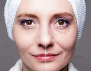 лифтинг кожи вокруг глаз