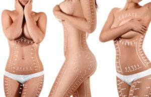 Популярные зоны липосакции тела