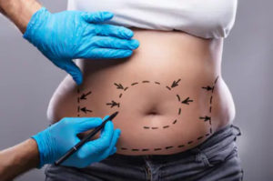 зони ліпосакції на животі пацієнта