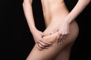 Методы липосакции тела