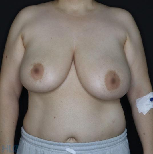 До реконструкции груди (до уменьшения груди) - фото спереди