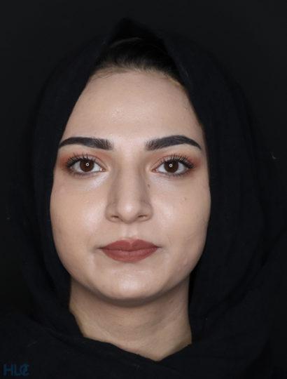 До процедури ринопластики дівчині, корекція кінчика носа відкритим методом - Вид спереду