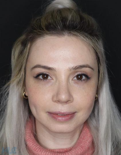 Спустя 2 месяца после реконструкции носовой перегородки и коррекции кончика носа - Вид спереди