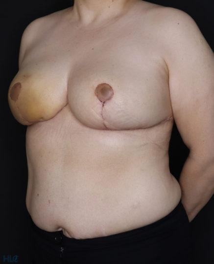 После уменьшения груди женщине - результат операции - Вид слева под углом