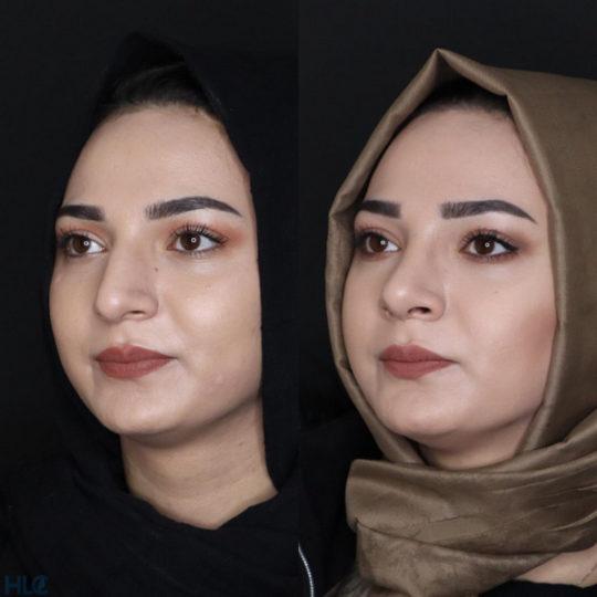 До и после ринопластики, сравнительное фото - вид под углом слева