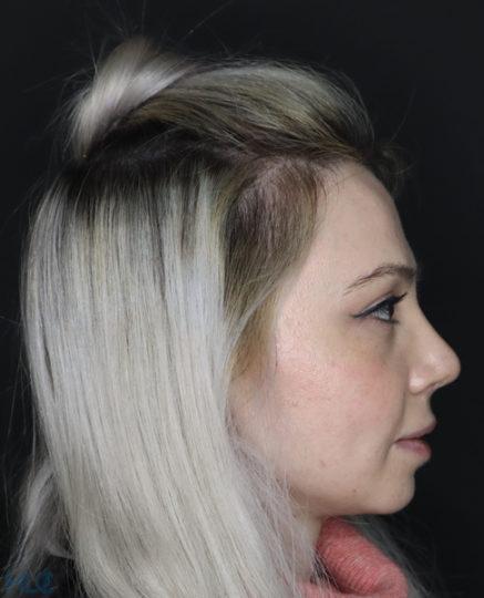 Через 2 місяці після реконструкції носової перегородки і корекції кінчика носа - Вид справа