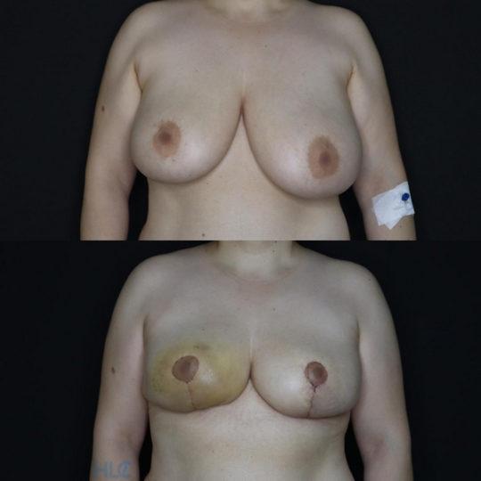 Сравнение до и после операции по уменьшению груди - вид спереди