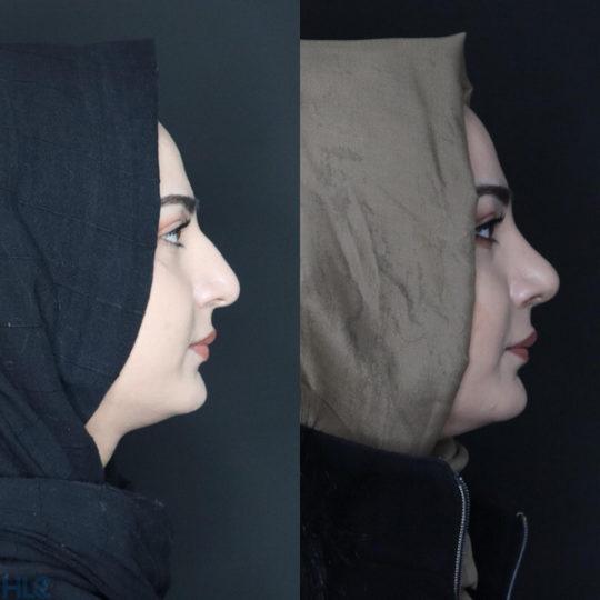 До и после ринопластики, сравнительное фото - вид сбоку