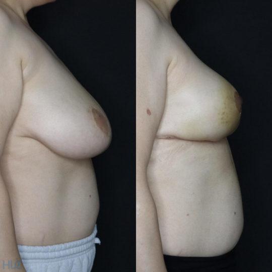 Порівняння до і після операції по зменшенню грудей - Вид справа