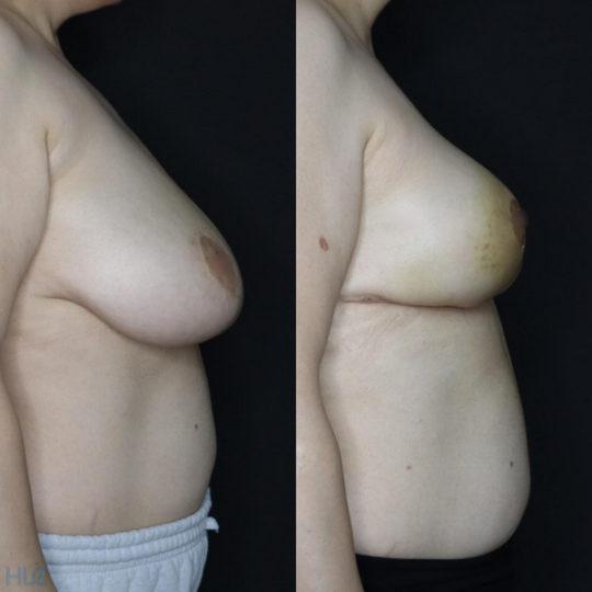 Сравнение до и после операции по уменьшению груди - вид справа