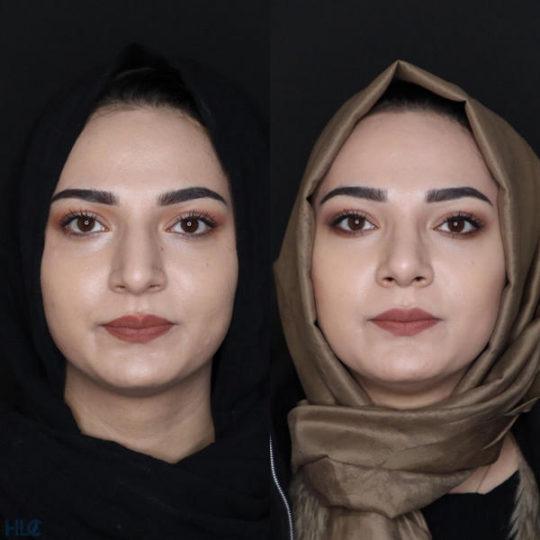 До и после ринопластики, сравнительное фото - вид спереди