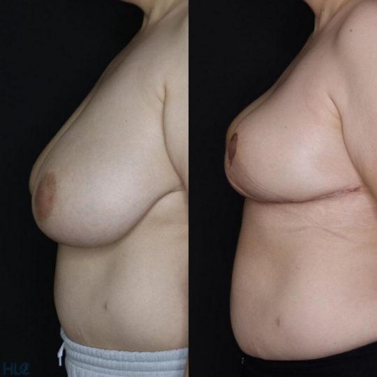 Сравнение до и после операции по уменьшению груди - вид слева