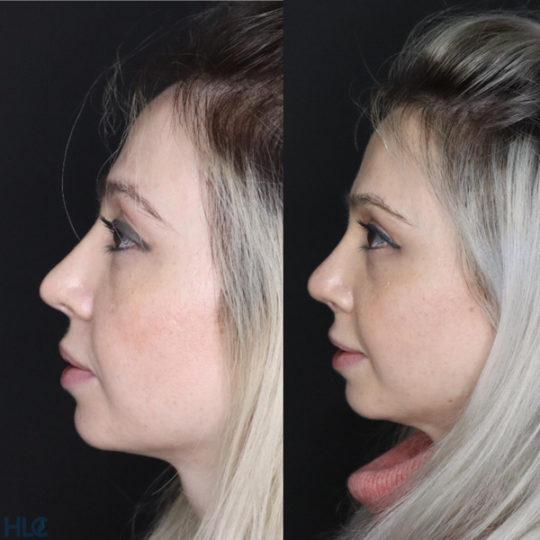 Сравнение до и спустя 2 месяца после операции - Вид слева