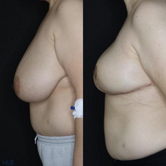Порівняння до і після операції по зменшенню грудей з нахилом вперед - Вид зліва