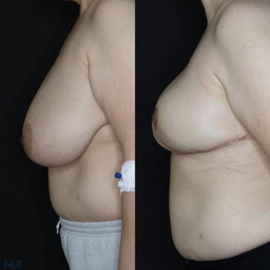 Сравнение до и после операции по уменьшению груди с наклоном вперёд - вид слева