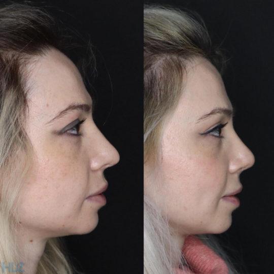 Порівняння до і через 2 місяці після операції - Вид справа
