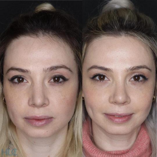 Сравнение до и спустя 2 месяца после операции - Вид спереди