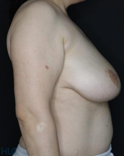 До реконструкції грудей (до зменшення грудей) - Фото справа