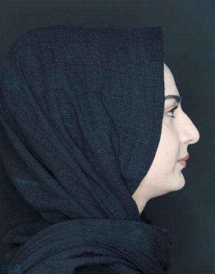 До процедури ринопластики дівчині, корекція кінчика носа відкритим методом - Вид збоку