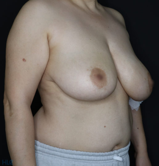 До реконструкции груди (до уменьшения груди) - фото справа под углом
