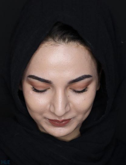 До процедури ринопластики дівчині, корекція кінчика носа відкритим методом - Вид зверху