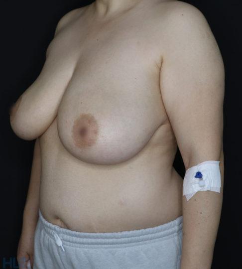До реконструкции груди (до уменьшения груди) - фото слева под углом