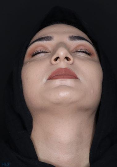 До процедуры ринопластики девушке, коррекция кончика носа открытым методом - Вид снизу