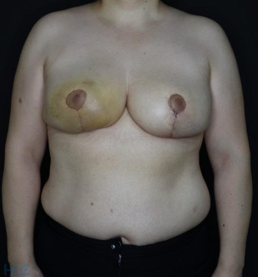 Після зменшення грудей жінці - результат операції - Вид спереду