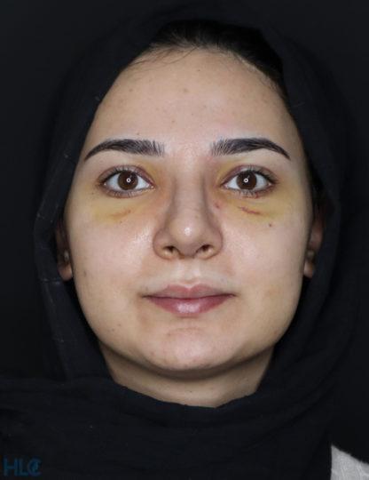 Після ринопластики дівчині, корекція кінчика носа відкритим методом - Вид спереду