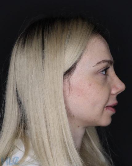 Через тиждень після ринопластики: через 5 днів зняті шви і бандаж - Вид справа