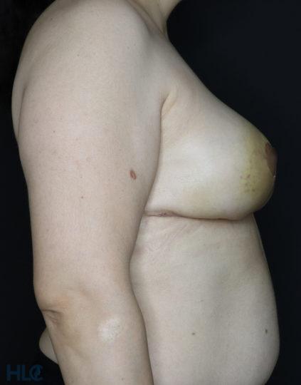 После уменьшения груди женщине - результат операции - Вид справа