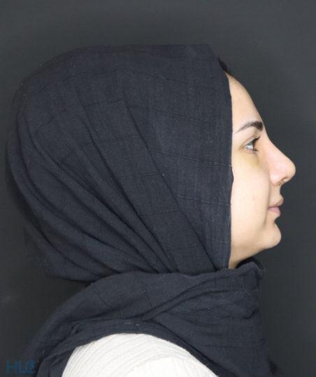 Після ринопластики дівчині, корекція кінчика носа відкритим методом - Вид збоку