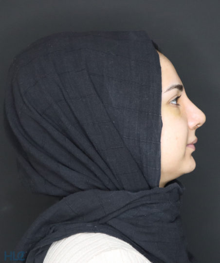 После ринопластики девушке, коррекция кончика носа открытым методом - Вид сбоку