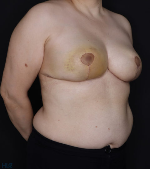 После уменьшения груди женщине - результат операции - Вид спереди под углом