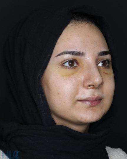 После ринопластики девушке, коррекция кончика носа открытым методом - Вид под углом, справа