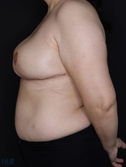 После уменьшения груди женщине - результат операции - Вид слева