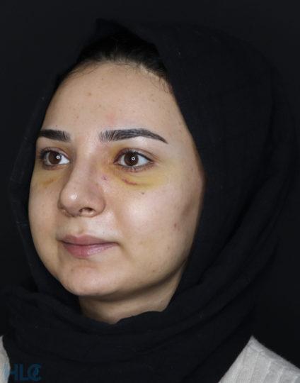 После ринопластики девушке, коррекция кончика носа открытым методом - Вид под углом, слева